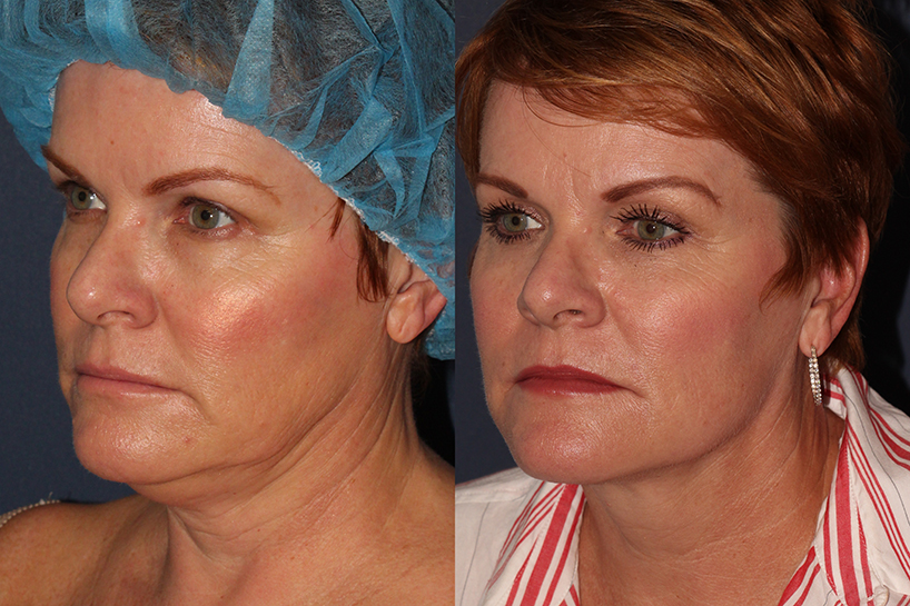 Actual un-retouched patient before and after ThermiTight for chin contouring by Dr. Wu. Disclaimer: Results may vary from patient to patient. Results are not guaranteed