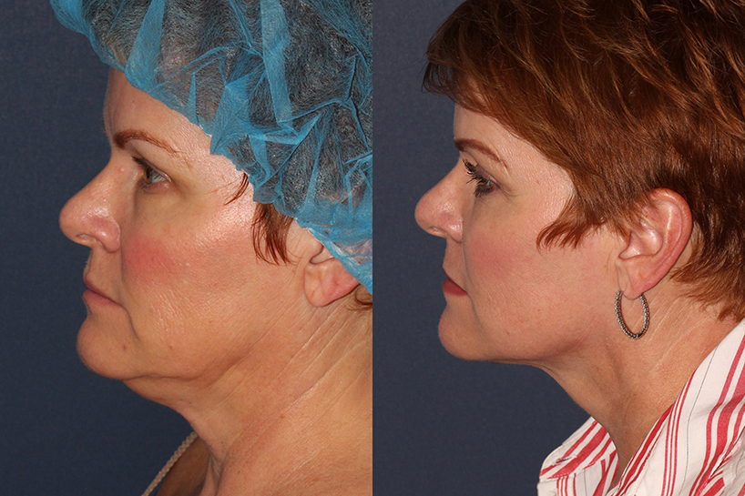 Actual un-retouched patient before and after ThermiTight to tighten skin under the chin and neck by Dr. Wu. Disclaimer: Results may vary from patient to patient. Results are not guaranteed