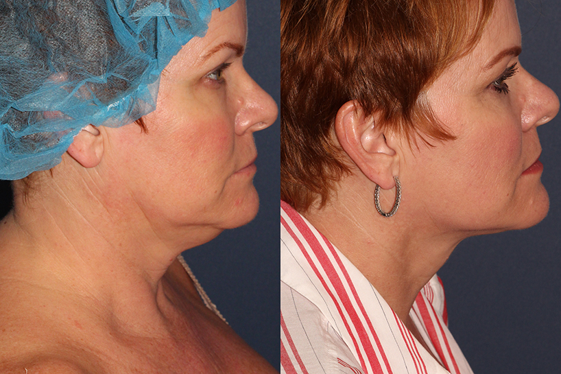 Actual un-retouched patient before and after ThermiTight to address sagging skin under the chin and neck by Dr. Wu. Disclaimer: Results may vary from patient to patient. Results are not guaranteed