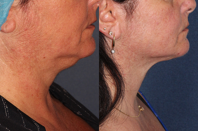 Actual un-retouched patient before and after ThermiTight to address skin laxity under the chin and neck by Dr. Wu. Disclaimer: Results may vary from patient to patient. Results are not guaranteed