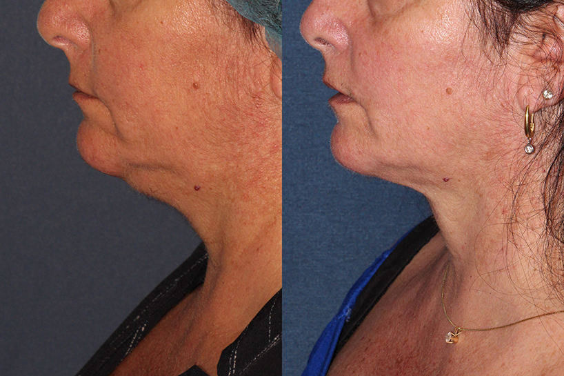 Actual un-retouched patient before and after ThermiTight to address skin laxity under the chin by Dr. Wu. Disclaimer: Results may vary from patient to patient. Results are not guaranteed