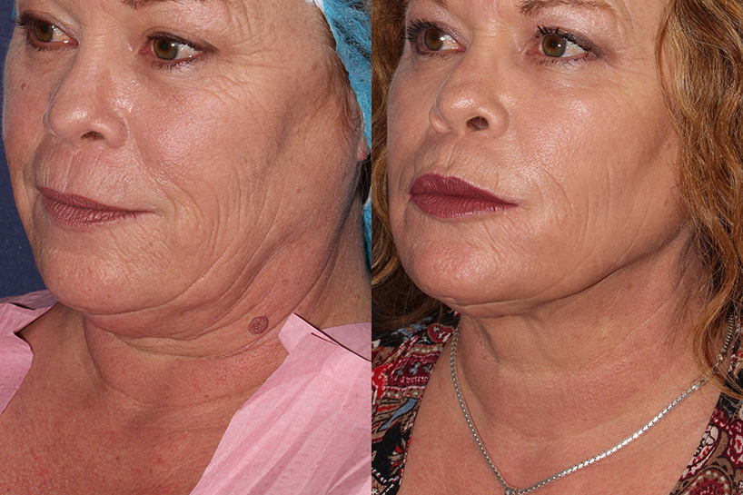 Actual un-retouched patient before and after ThermiTight to treat skin laxity under the chin by Dr. Wu. Disclaimer: Results may vary from patient to patient. Results are not guaranteed