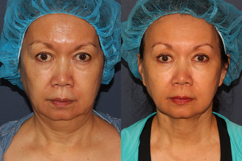 Actual un-retouched patient before and afterThermiTight treatment to contour the chin by Dr. Wu. Disclaimer: Results may vary from patient to patient. Results are not guaranteed