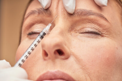 Older women getting anti aging injections to treat her wrinkles, San Diego, CA