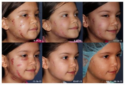 Actual un-retouched patient before and after laser treatment for dog bite scar by Dr. Goldman. Disclaimer: Results may vary from patient to patient. Results are not guaranteed.