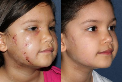 Actual un-retouched patient before and after laser treatment for scar reduction by Dr. Goldman. Disclaimer: Results may vary from patient to patient. Results are not guaranteed.