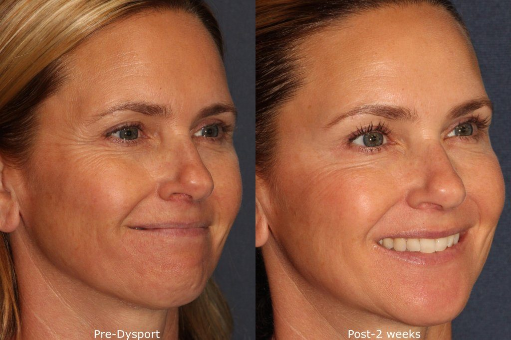Actual un-retouched patient before and after Dysport treatment for crow's feet by Dr. Wu. Disclaimer: Results may vary from patient to patient. Results are not guaranteed.