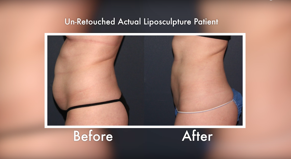 Actual un-retouched patient before and after liposculpture treatment for abdominal contouring by Dr. Groff. Disclaimer: Results may vary from patient to patient. Results are not guaranteed.