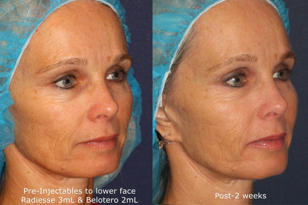 Actual un-retouched patient before and after Radiesse and Belotero injections for wrinkle reduction by Dr. Fabi. Disclaimer: Results may vary from patient to patient. Results are not guaranteed.