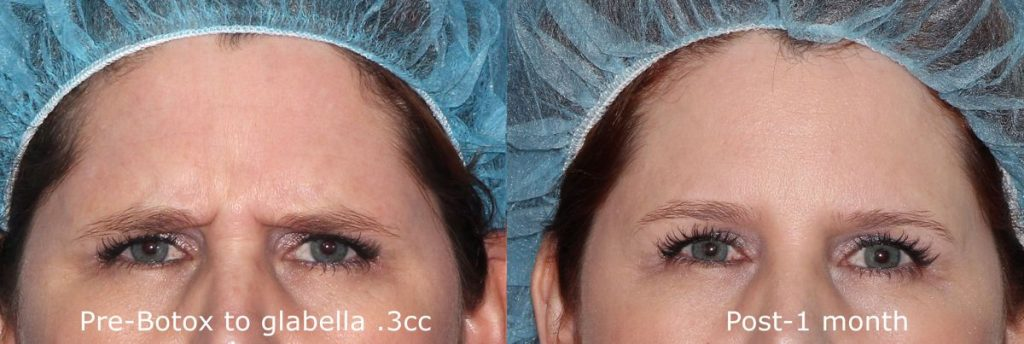 Actual un-retouched patient before and after Botox treatment for glabellar lines by Dr. Fabi. Disclaimer: Results may vary from patient to patient. Results are not guaranteed.
