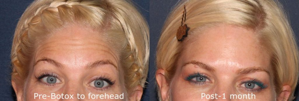 Actual un-retouched patient before and after Botox treatment for forehead wrinkles by Dr. Fabi. Disclaimer: Results may vary from patient to patient. Results are not guaranteed.