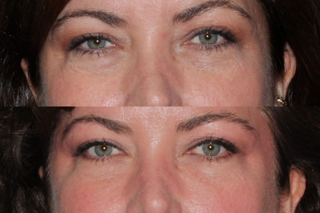 Actual un-retouched patient before and after Restylane injections to treat dark circles under the eyes by Dr. Fabi. Disclaimer: Results may vary from patient to patient. Results are not guaranteed.