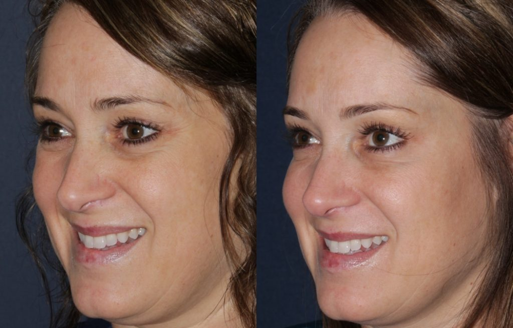 Actual un-retouched patient before and after Dysport treatment for crow's feet by Dr. Fabi. Disclaimer: Results may vary from patient to patient. Results are not guaranteed.
