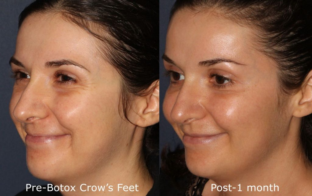 Actual un-retouched patient before and after Botox injections to reduce crow's feet by Dr. Fabi. Disclaimer: Results may vary from patient to patient. Results are not guaranteed.