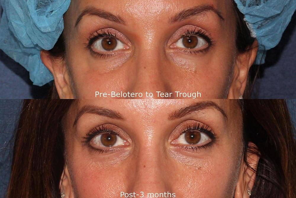 Actual un-retouched patient before and after Belotero injections to treat hollowing under the eyes by Dr. Fabi. Disclaimer: Results may vary from patient to patient. Results are not guaranteed.