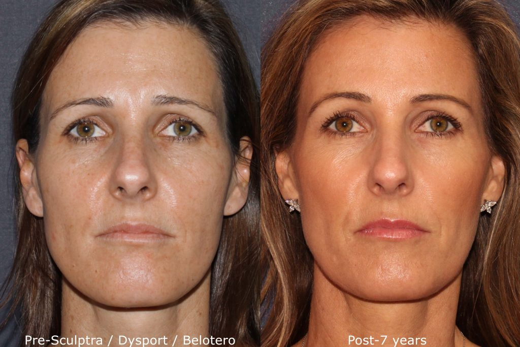 Actual un-retouched patient before and after Sculptra, Belotero and Dysport for facial rejuvenation by Dr. Fabi. Disclaimer: Results may vary from patient to patient. Results are not guaranteed.
