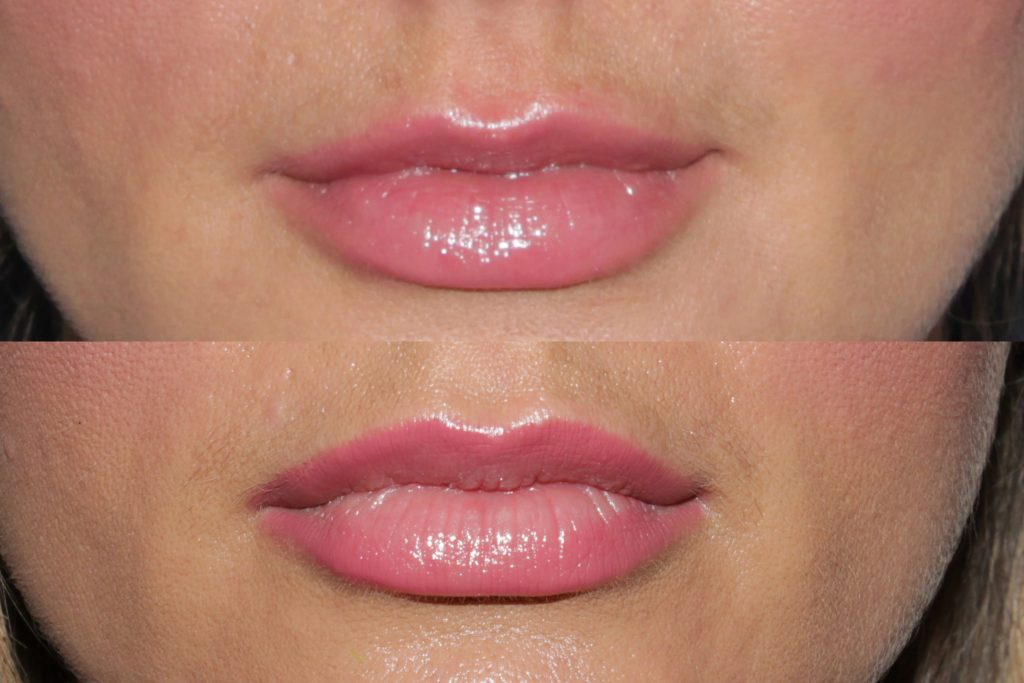 Actual un-retouched patient before and after Juvederm injections to augment the lips by Dr. Groff. Disclaimer: Results may vary from patient to patient. Results are not guaranteed.
