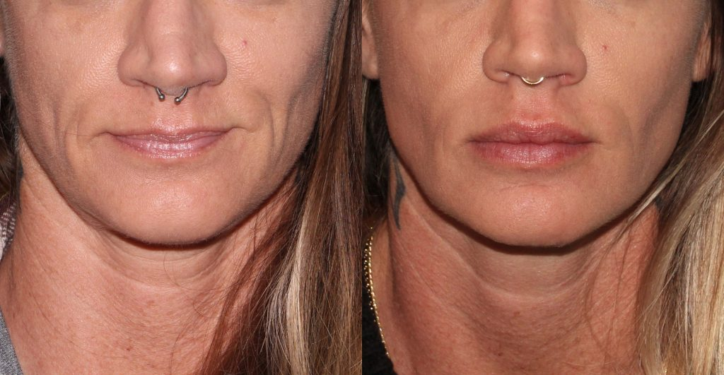 Actual un-retouched patient before and after Voluma filler injections to augment the lips by Dr. Groff. Disclaimer: Results may vary from patient to patient. Results are not guaranteed.
