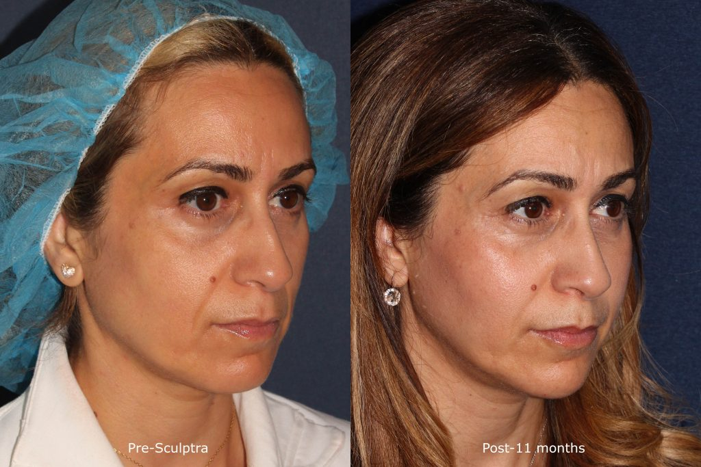 Actual un-retouched patient before and after Sculptra injections to treat hollows under the eyes by Dr. Fabi. Disclaimer: Results may vary from patient to patient. Results are not guaranteed.