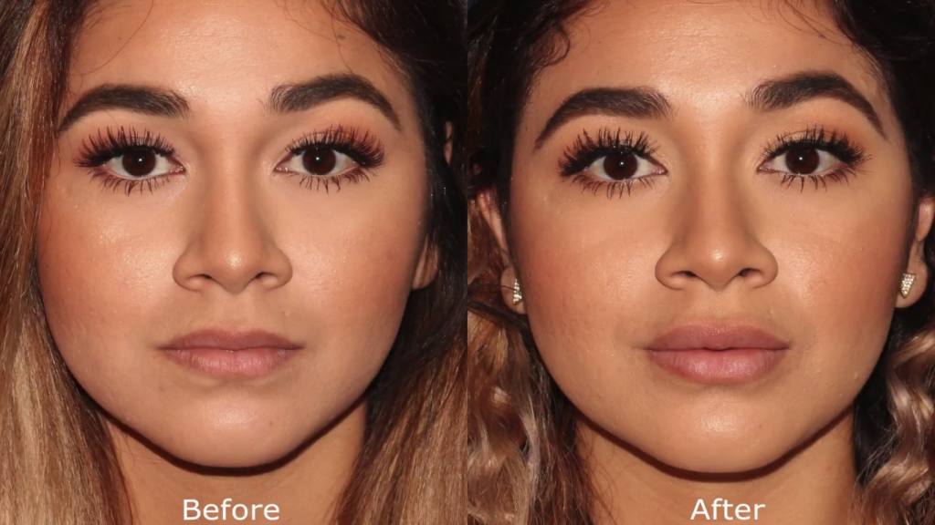 Actual un-retouched patient before and after filler treatment for keyhole pout lip augmentation by Dr. Butterwick. Disclaimer: Results may vary from patient to patient. Results are not guaranteed.