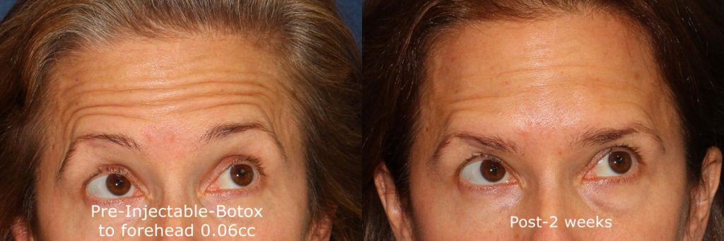 Actual un-retouched patient before and after Botox injections to treat forehead wrinkles by Dr. Wu. Disclaimer: Results may vary from patient to patient. Results are not guaranteed.
