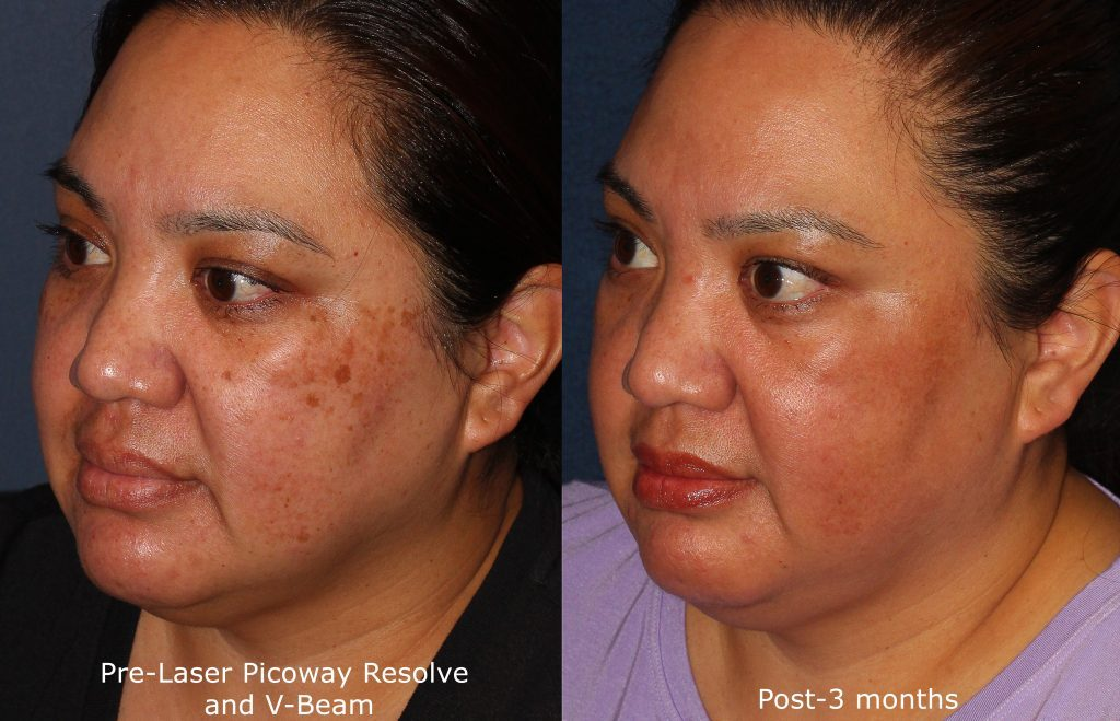 Actual un-retouched patient before and after Picoway laser treatment for brown spots and sun damage by Dr. Wu. Disclaimer: Results may vary from patient to patient. Results are not guaranteed.