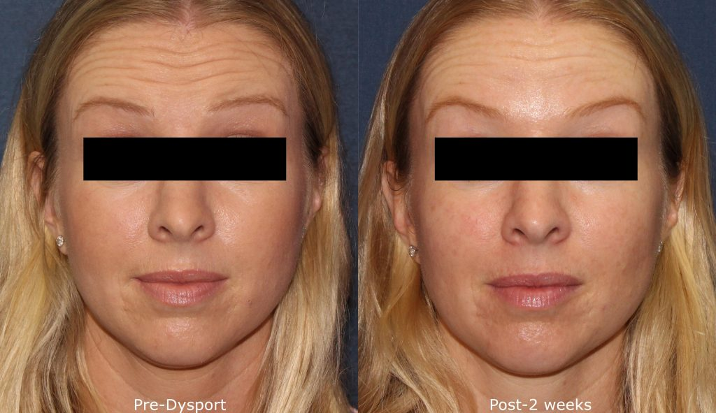 Actual un-retouched patient before and after Dysport treatment for forehead wrinkles by Dr. Wu. Disclaimer: Results may vary from patient to patient. Results are not guaranteed.