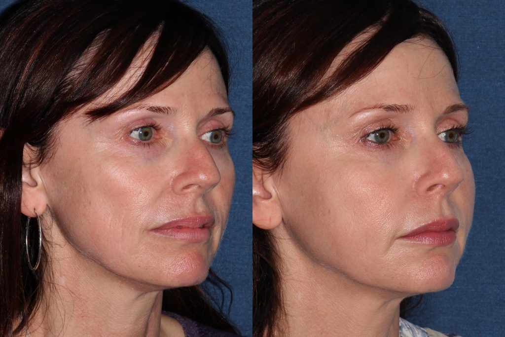 Actual un-retouched patient before and after Belotero injections for a liquid facelift by Dr Groff. Disclaimer: Results may vary from patient to patient. Results are not guaranteed.