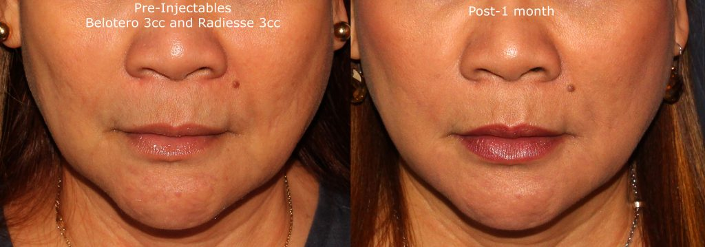 Actual un-retouched patient before and after Radiesse and Belotero injections to treat wrinkles of the lower face by Dr. Butterwick. Disclaimer: Results may vary from patient to patient. Results are not guaranteed.