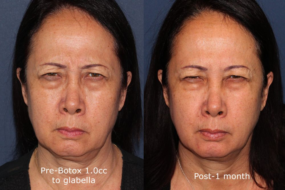 Actual un-retouched patient before and after Botox treatment for glabellar lines by Dr. Butterwick. Disclaimer: Results may vary from patient to patient. Results are not guaranteed.
