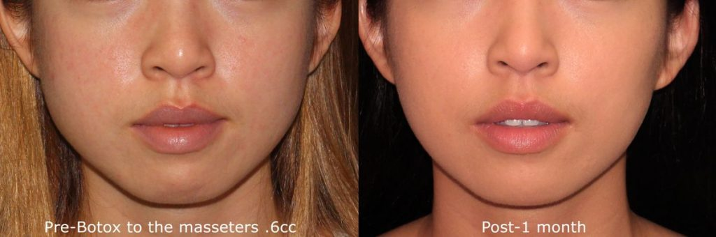 Actual un-retouched patient before and after Botox treatment for masseter reduction by Dr. Butterwick. Disclaimer: Results may vary from patient to patient. Results are not guaranteed.