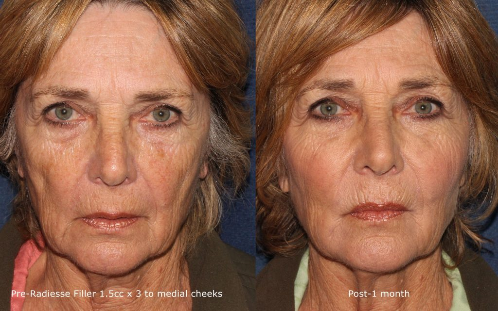 Actual un-retouched patient before and after Radiesse injections to augment the cheeks by Dr. Butterwick. Disclaimer: Results may vary from patient to patient. Results are not guaranteed.