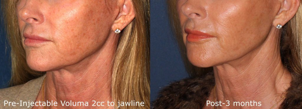 Actual un-retouched patient before and after Voluma injections to augment and contour the chin and jawline by Dr. Butterwick. Disclaimer: Results may vary from patient to patient. Results are not guaranteed.