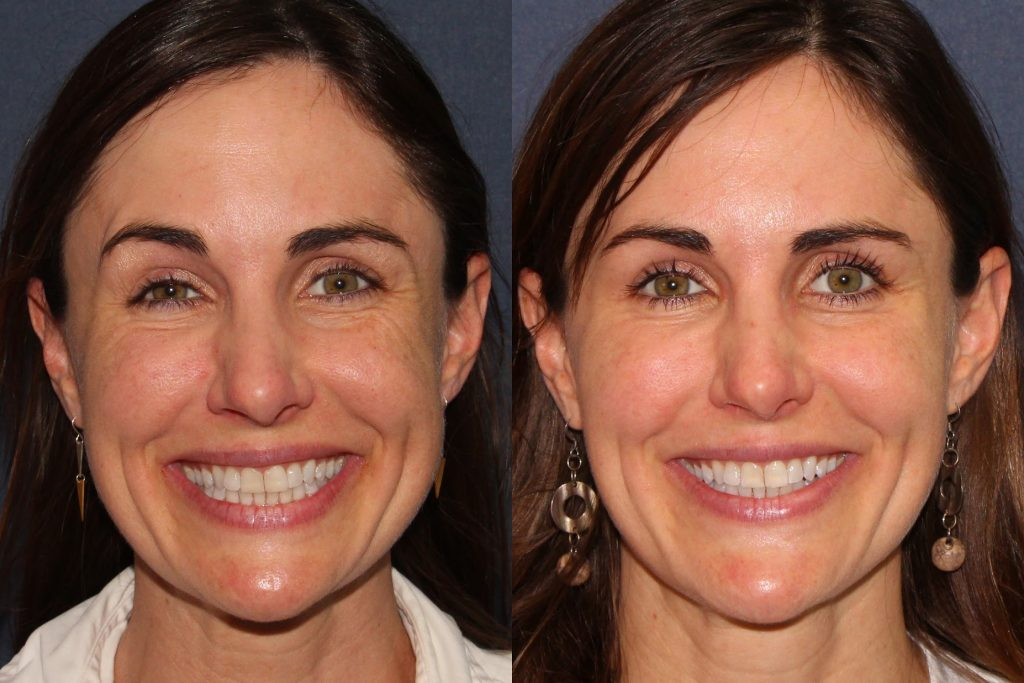 Actual un-retouched patient before and after Vollure and Voluma injections to augment the cheeks and chin by Dr. Fabi. Disclaimer: Results may vary from patient to patient. Results are not guaranteed.