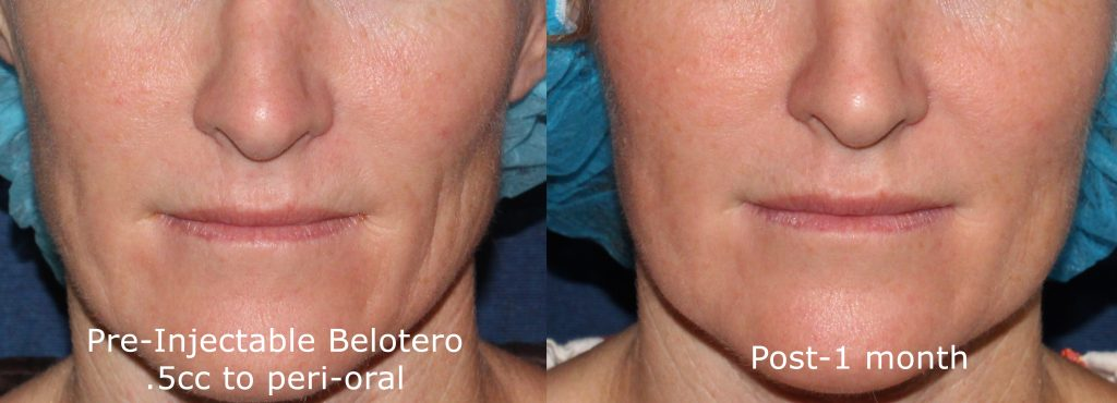 Actual un-retouched patient before and after Belotero injections to treat perioral lines by Dr. Fabi. Disclaimer: Results may vary from patient to patient. Results are not guaranteed.