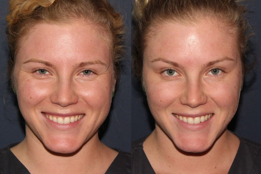 Actual un-retouched patient before and after Botox treatment for brow lift by Dr. Fabi. Disclaimer: Results may vary from patient to patient. Results are not guaranteed.