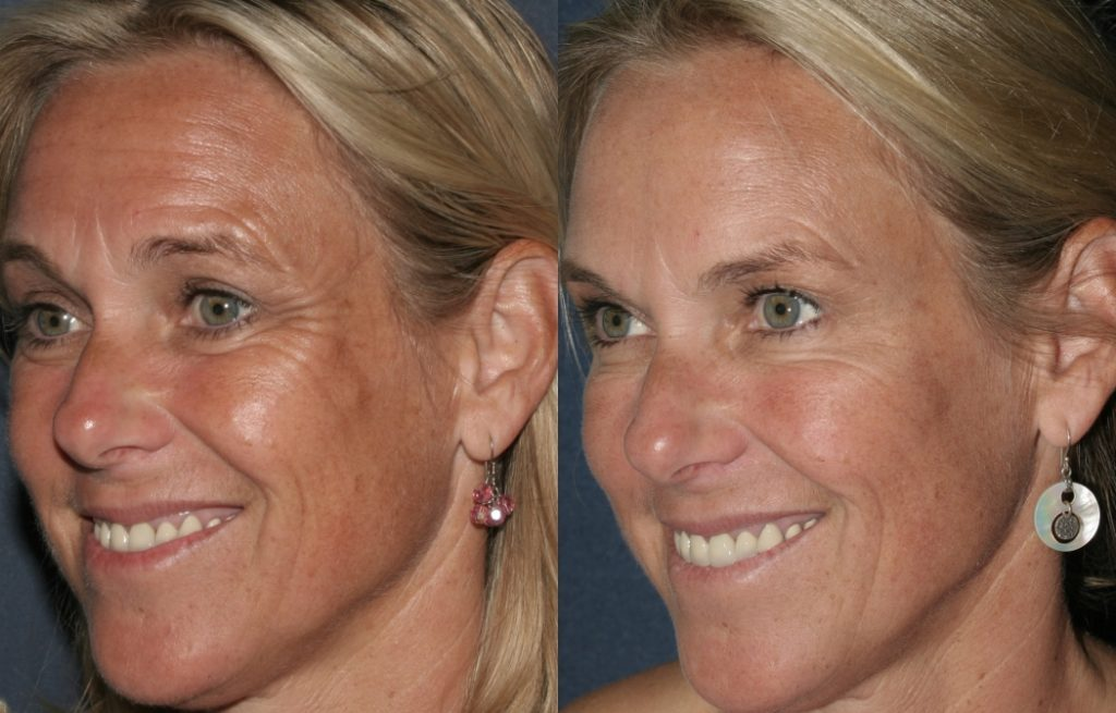 Actual un-retouched patient before and after Botox injection to treat lines and wrinkles by Dr. Fabi. Disclaimer: Results may vary from patient to patient. Results are not guaranteed.