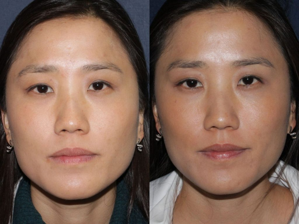 Actual un-retouched patient before and after Botox injections into the masseter muscle to slim the jawline by Dr. Fabi. Disclaimer: Results may vary from patient to patient. Results are not guaranteed.
