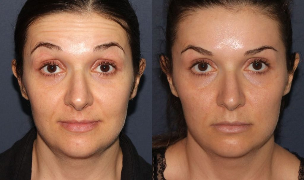 Actual un-retouched patient before and after Botox injections to treat forehead furrows by Dr. Fabi. Disclaimer: Results may vary from patient to patient. Results are not guaranteed.