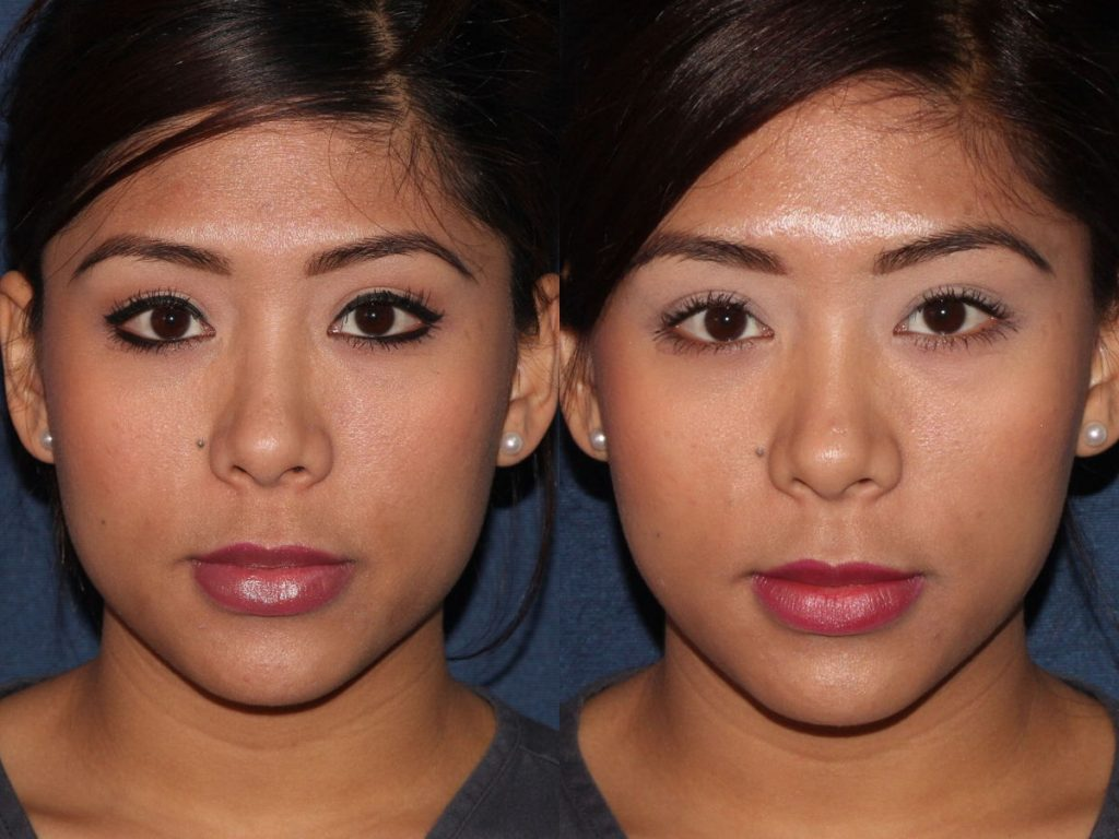 Actual un-retouched patient before and after Botox injections in the masseter muscles to slim the jawline by Dr. Fabi. Disclaimer: Results may vary from patient to patient. Results are not guaranteed.