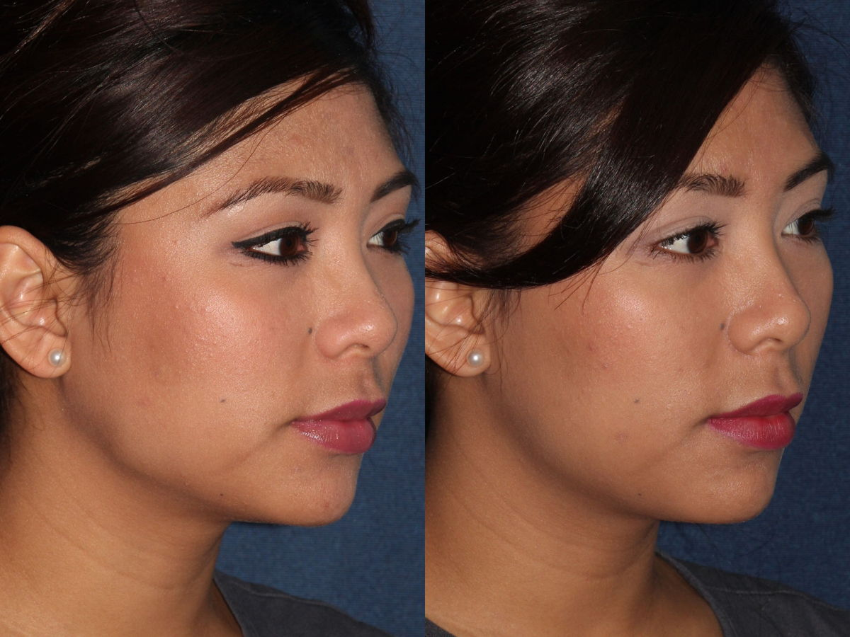 Actual un-retouched patient before and after Botox injections to the masseter muscles to slim the jawline by Dr. Fabi. Disclaimer: Results may vary from patient to patient. Results are not guaranteed.