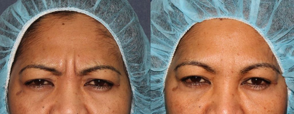 Actual un-retouched patient before and after Botox injections to treat forehead lines by Dr. Fabi. Disclaimer: Results may vary from patient to patient. Results are not guaranteed.