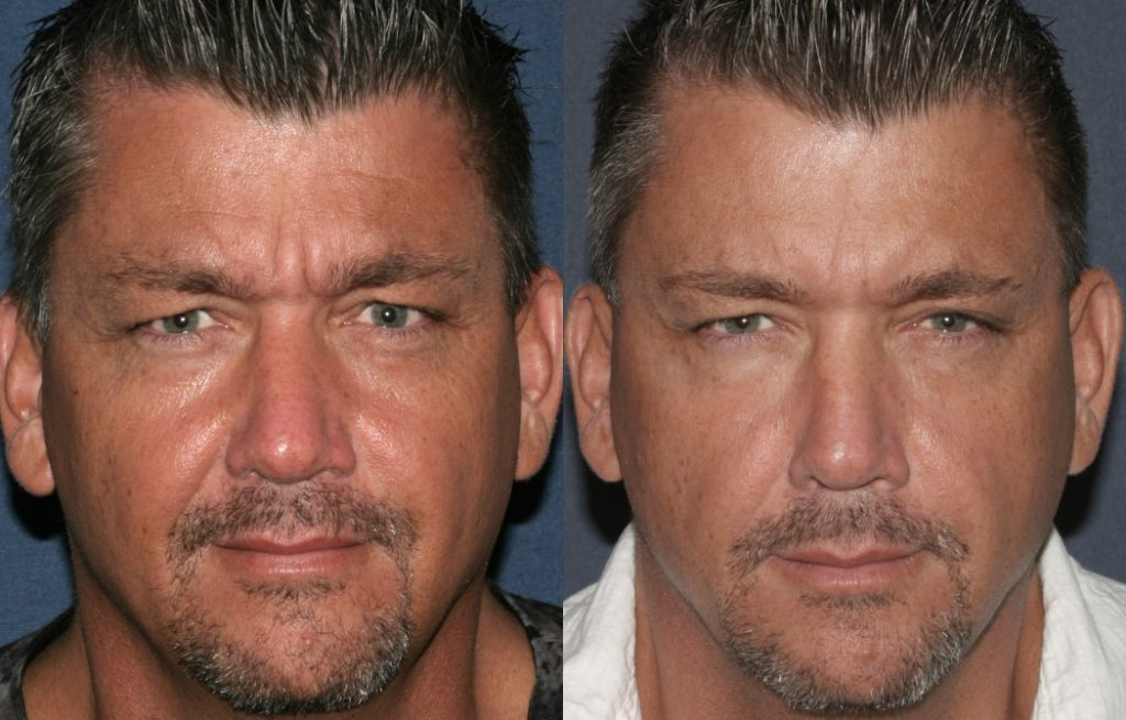Actual un-retouched patient before and after Botox injections to reduce glabellar lines by Dr. Fabi. Disclaimer: Results may vary from patient to patient. Results are not guaranteed.