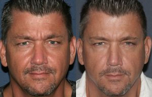 Before and after front image of Botox treatment on a male's glabellar lines performed by Dr. Fabi at our San Diego medical spa