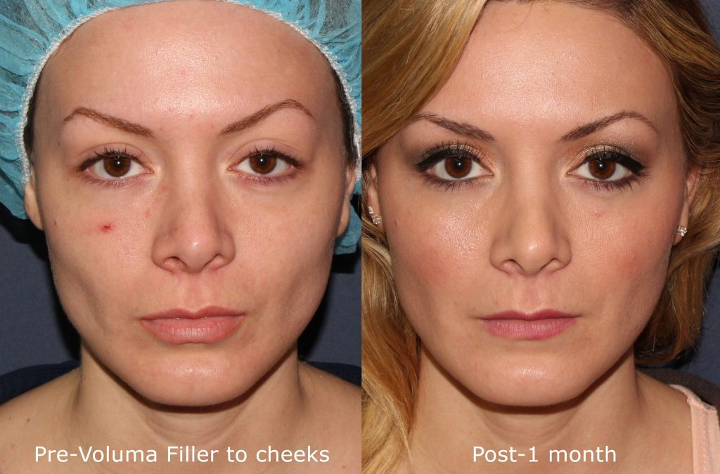 Actual un-retouched patient before and after Voluma injections to augment the cheeks by Dr. Fabi. Disclaimer: Results may vary from patient to patient. Results are not guaranteed.