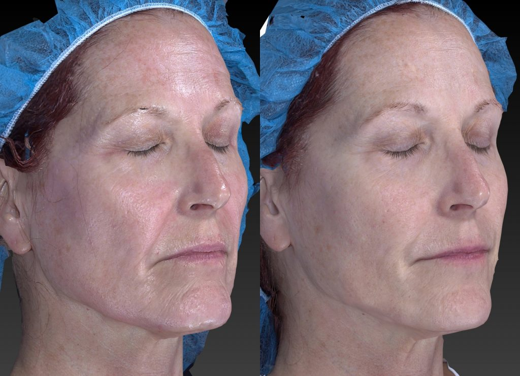 Actual un-retouched patient before and after Sculptra, Belotero and Radiesse for wrinkles and skin rejuvenation by Dr. Fabi. Disclaimer: Results may vary from patient to patient. Results are not guaranteed.