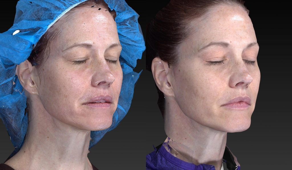 Actual un-retouched patient before and after filler treatment to augment cheeks and reduce wrinkles by Dr. Fabi. Disclaimer: Results may vary from patient to patient. Results are not guaranteed.