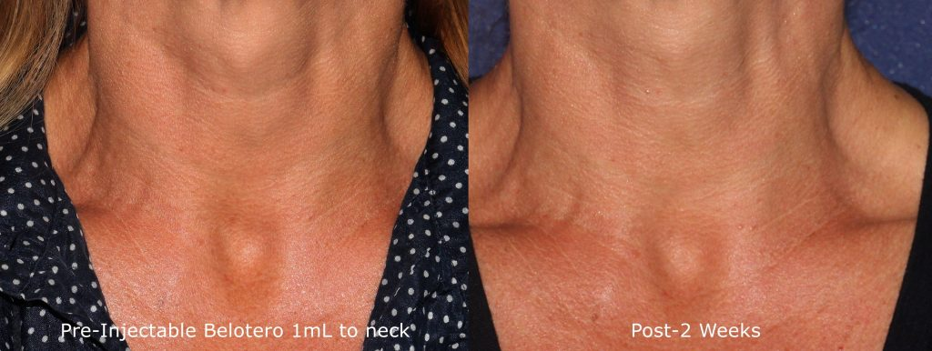 Actual un-retouched patient before and after Belotero injections to reduce neck lines by Dr. Fabi. Disclaimer: Results may vary from patient to patient. Results are not guaranteed.