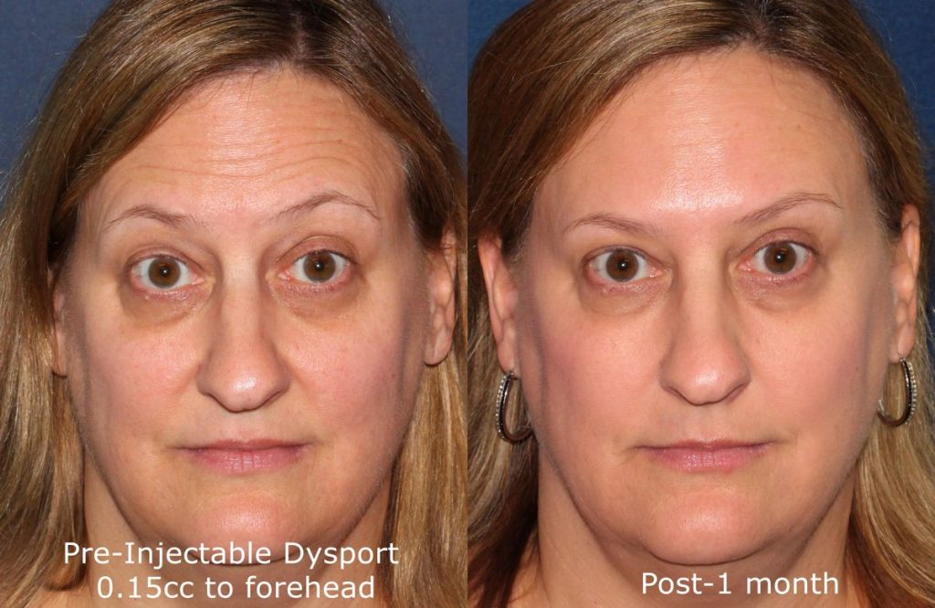 Actual un-retouched patient before and after Dysport injections to treat horizontal forehead wrinkles by Dr. Fabi. Disclaimer: Results may vary from patient to patient. Results are not guaranteed.
