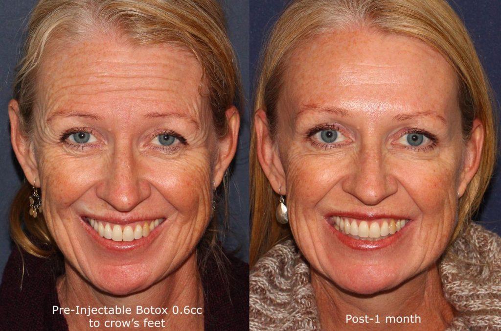 Actual un-retouched patient before and after Botox injections to reduce forehead wrinkles by Dr. Fabi. Disclaimer: Results may vary from patient to patient. Results are not guaranteed.